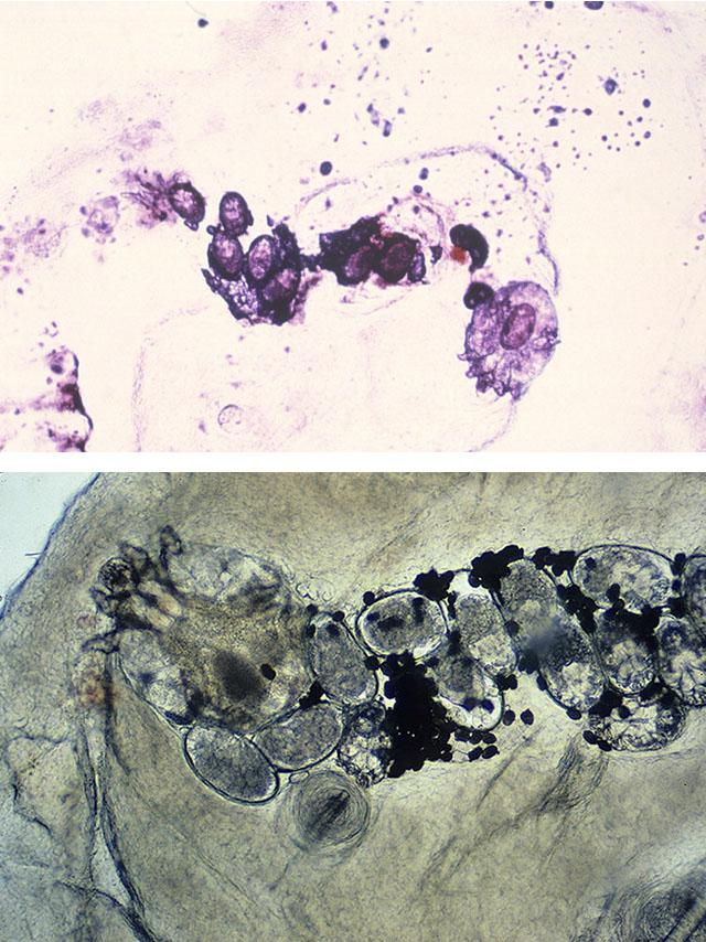 1. 2. Зображення коростяного ходу з кількома яйцями і вагітною самкою