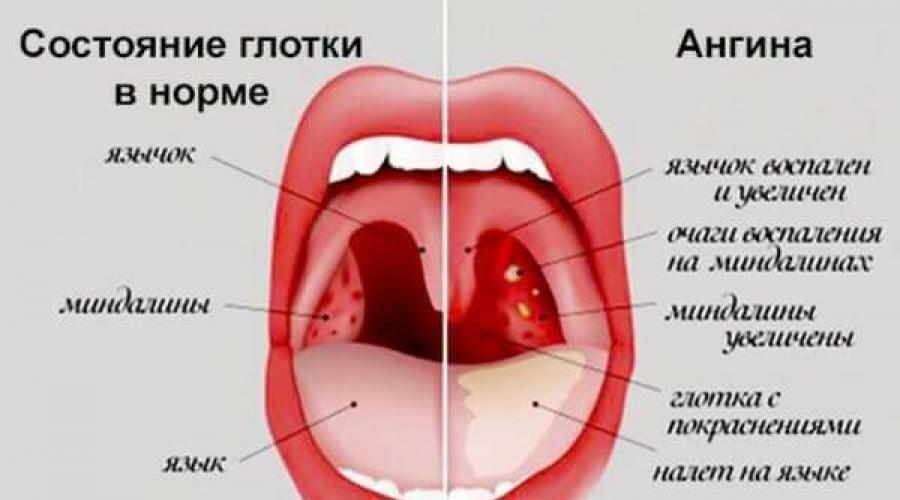 Лікування ангіни без ліків.