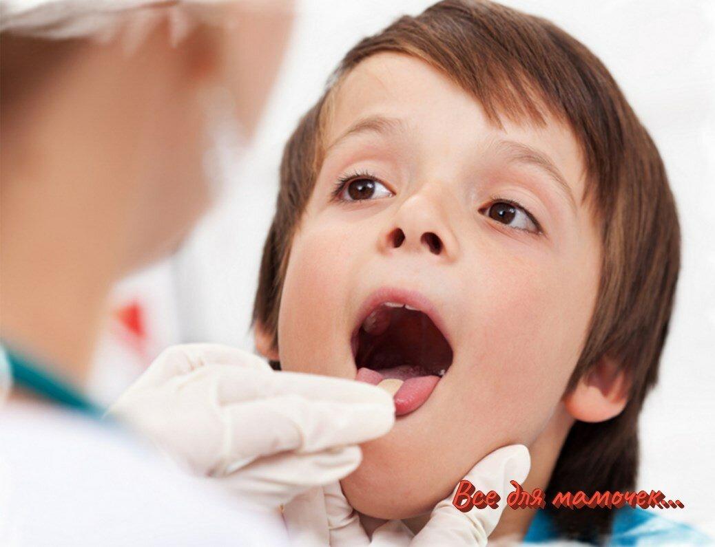 Якщо у дитини болить горло