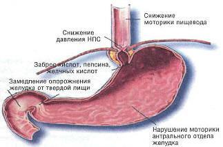 Гастроезофагеальна рефлюксна хвороба.