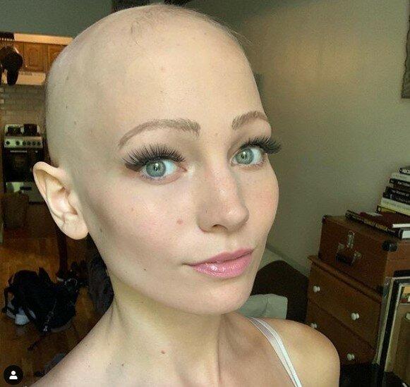Молода американка півроку спала в перуках, приховуючи лисину від бойфренда