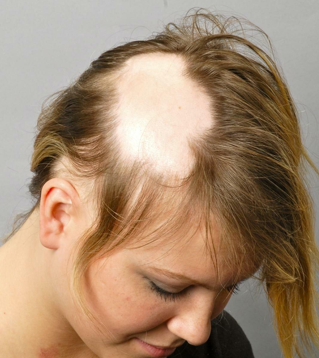 Можна воскресити безнадійно випадають волосся?