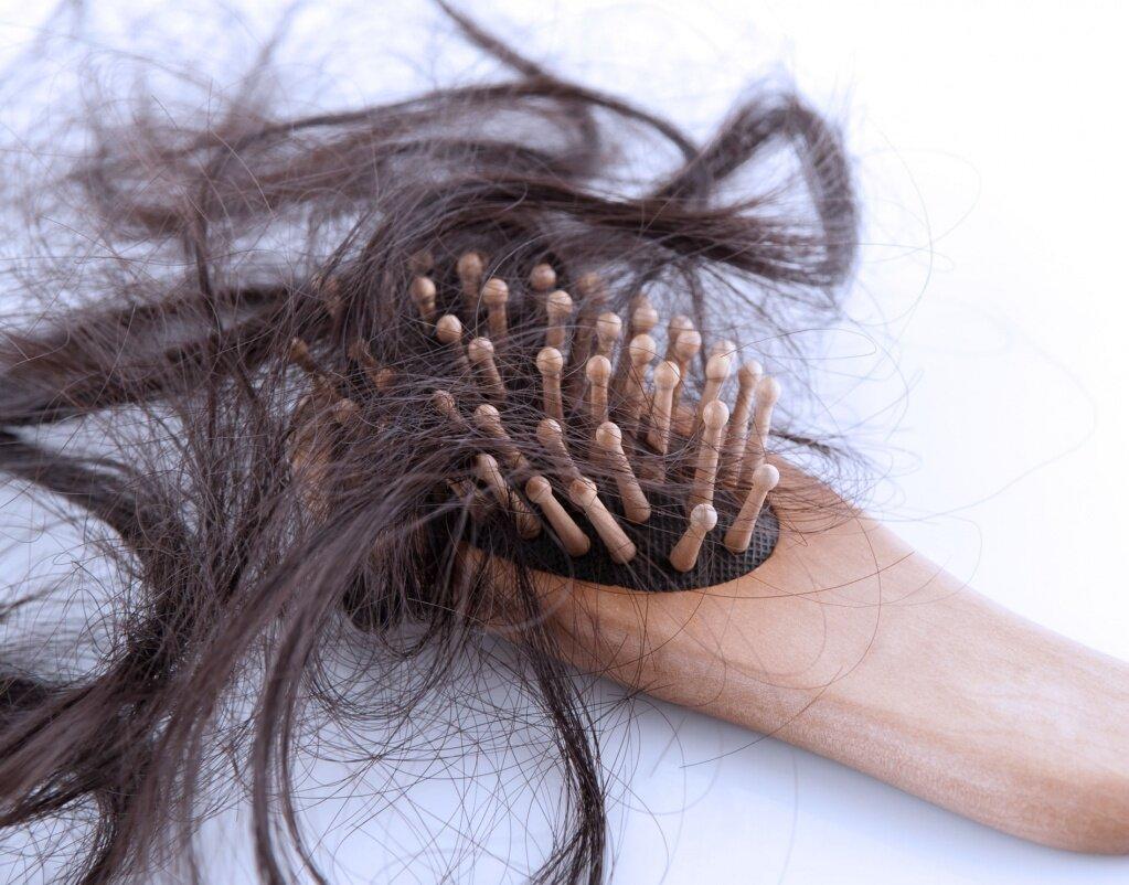 ТОП -3 розладів організму, з-за яких випадає волосся