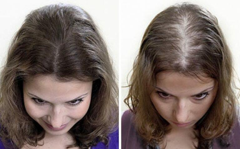 Ну хоч не облысела. 100 тисяч різних поневірянь у спробах зберегти волосся