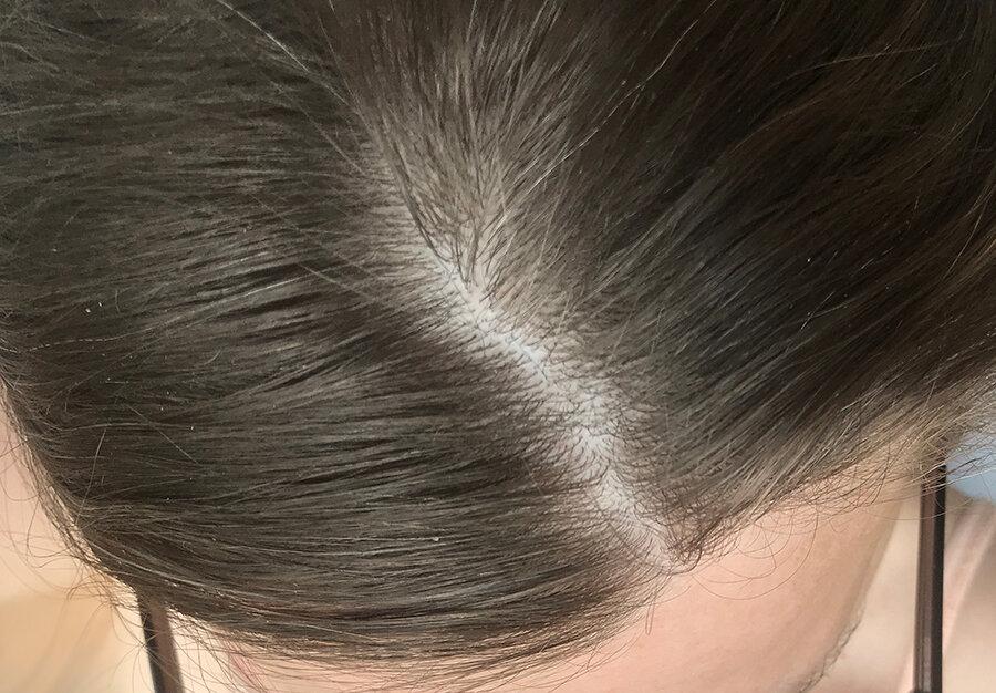 Фактори, що впливають на витончення волосся: рекомендації по догляду