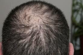 Що викликає випадання волосся? У цій статті ми розберемося в цьому, з допомогою знань американських вчених.
