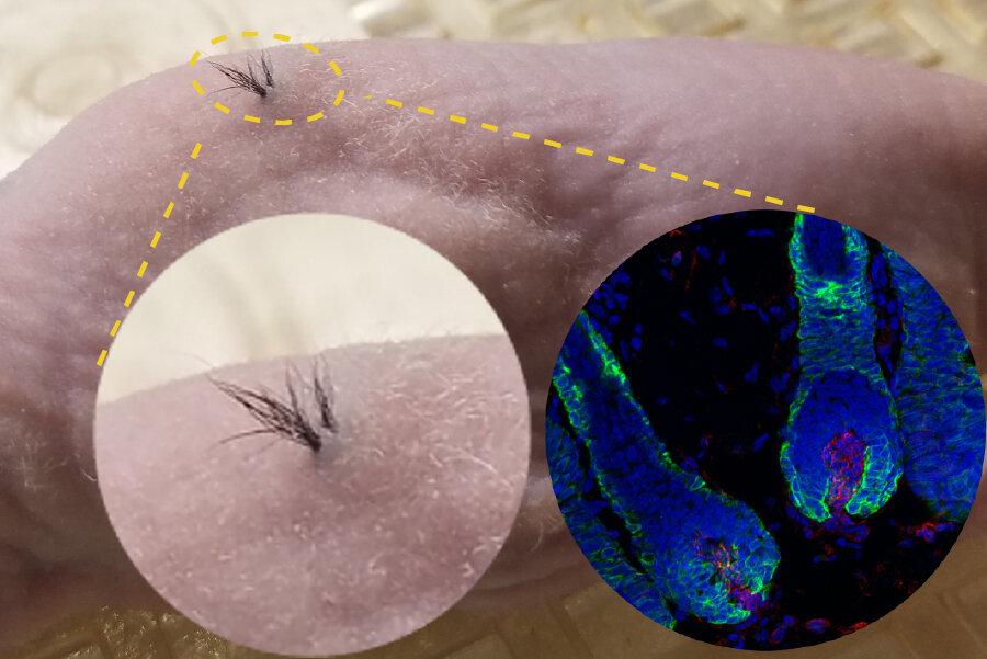 Облисіння можна вилікувати стовбуровими клітинами