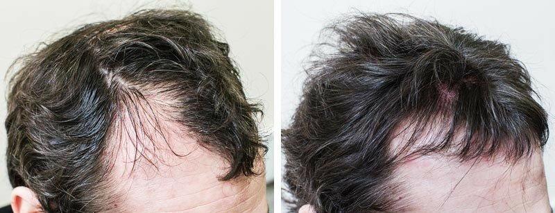 Вирощування волосся в 3D друку