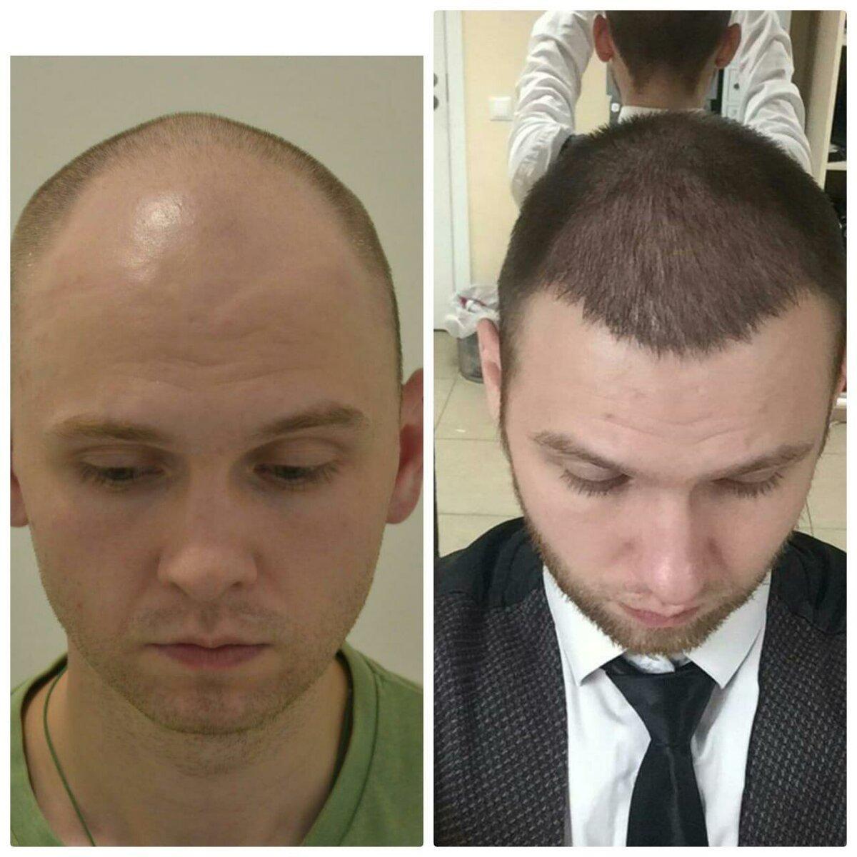 Як виглядає голова звичайної людини (не зірки) після пересадки волосся