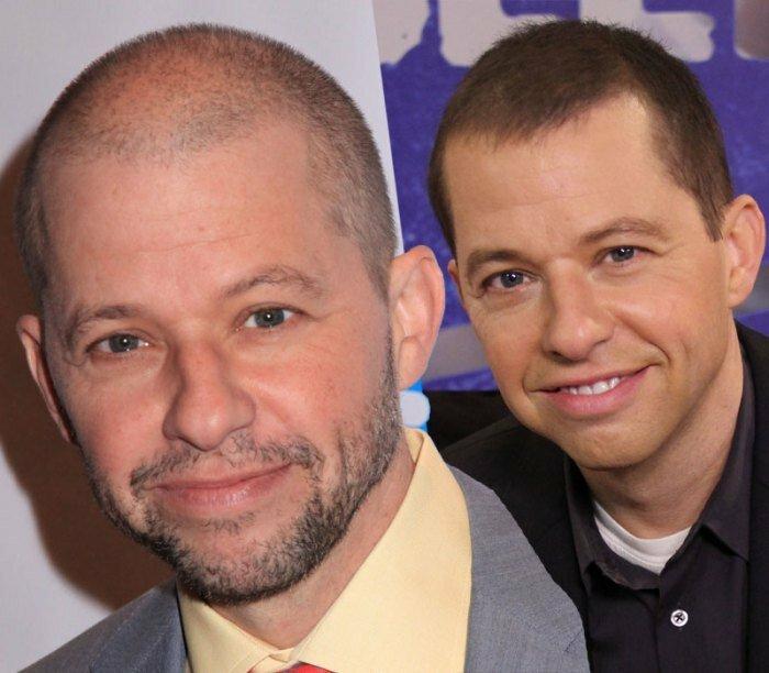 А їм не соромно: знаменитості, які зробили пересадку волосся