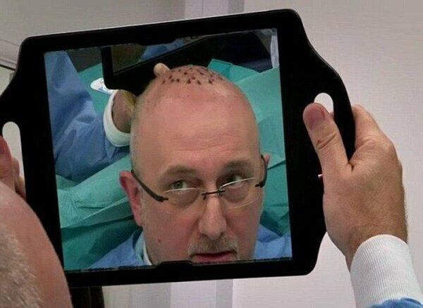 Неетична «Естетика»: як «кидають» пацієнтів шахраї у сфері пересадки волосся
