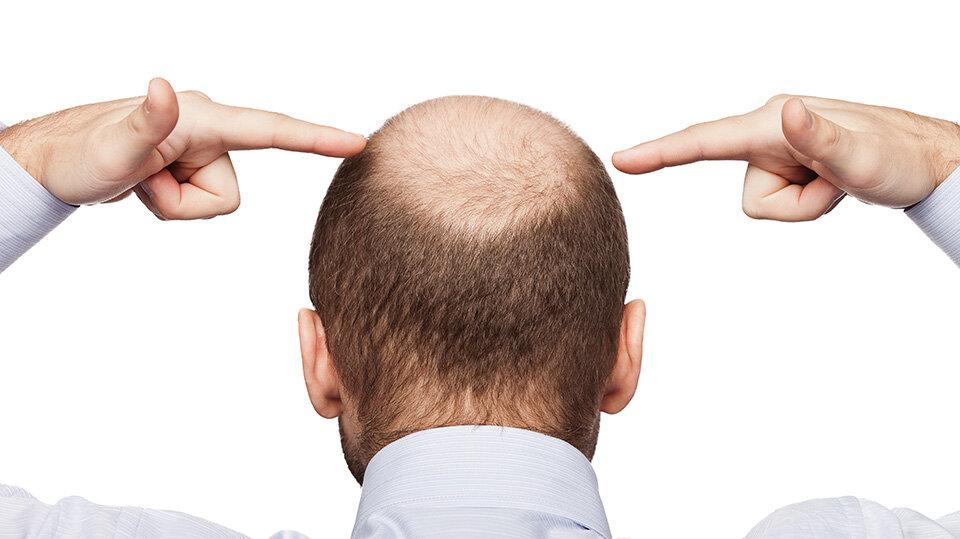 Чому чоловіки втрачають останні волосся? Нерви і стрес