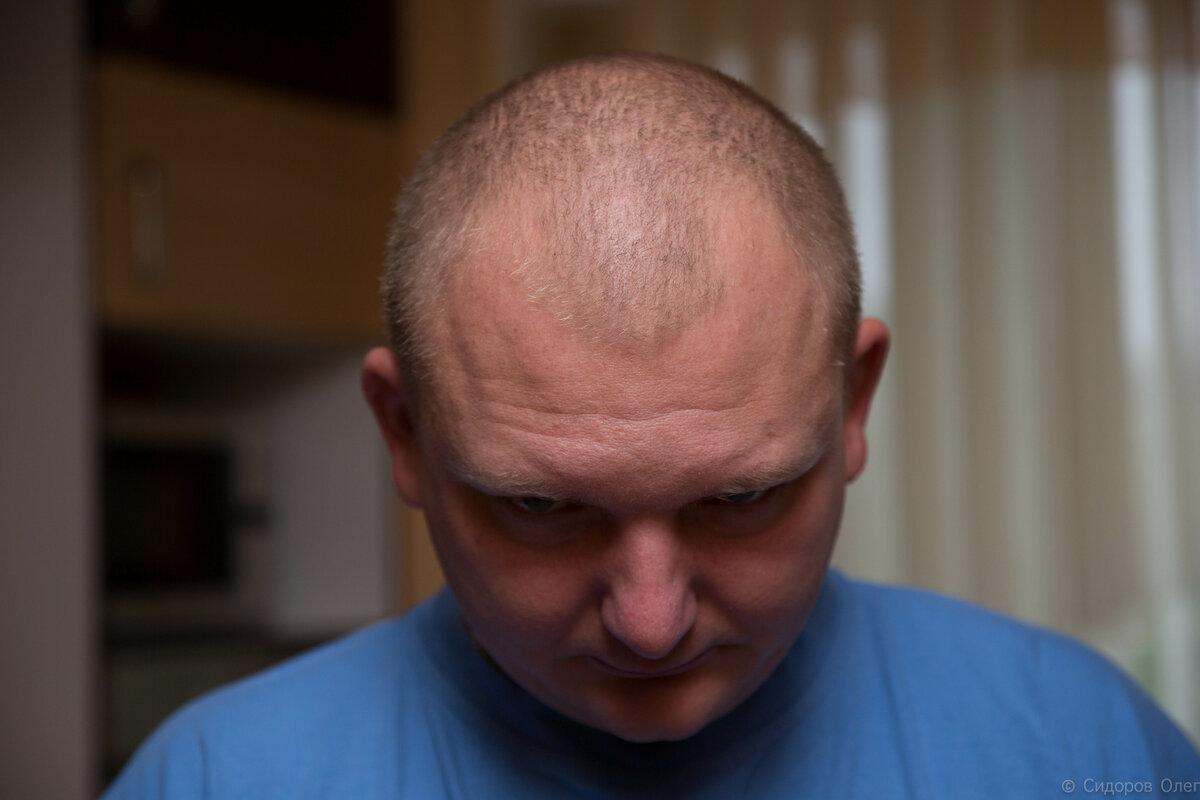 Як мені робили пересадку волосся. ФОТО (до і після)