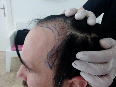 Чому не треба комплексувати при пересадці волосся