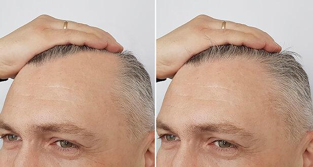 Пересадка волосся: кому це треба?