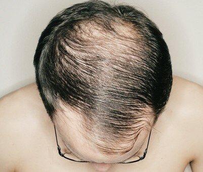 Проплешены у чоловіка на голові заросли волоссям через місяць