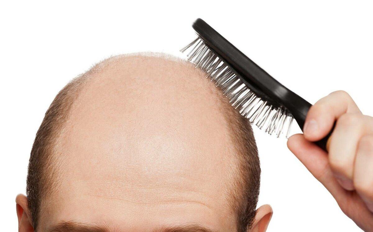 Названі головні причини випадіння волосся