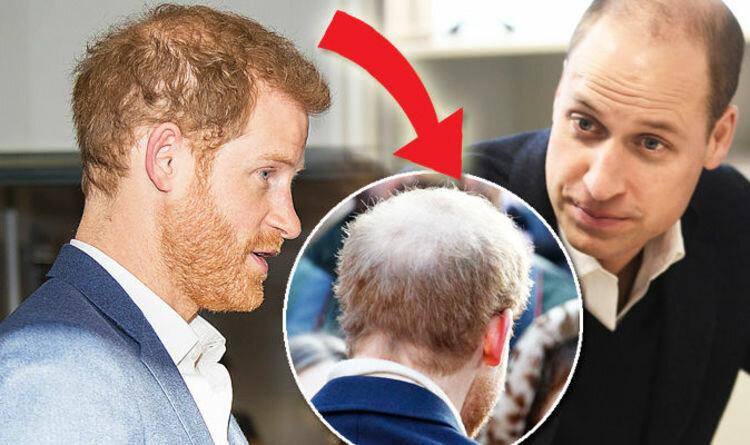Принц Гаррі втрачає волосся після весілля з Меган Маркл