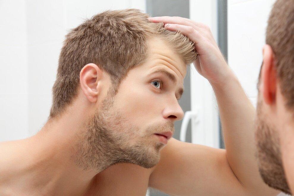 7 причин випадіння волосся у чоловіків