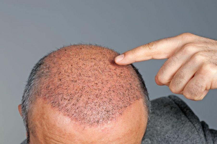 Як рости пересаджене волосся?