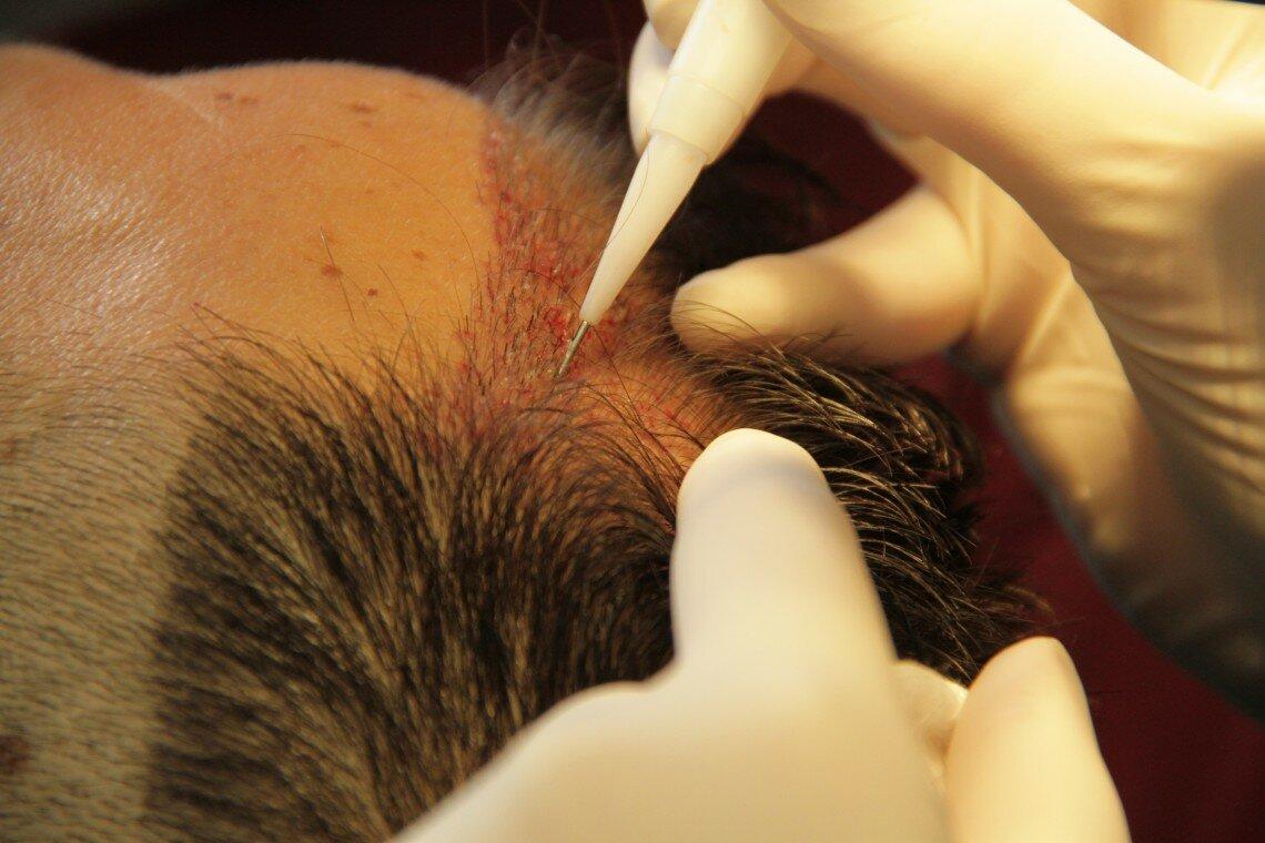 Пересадка чужих або штучних волосся?