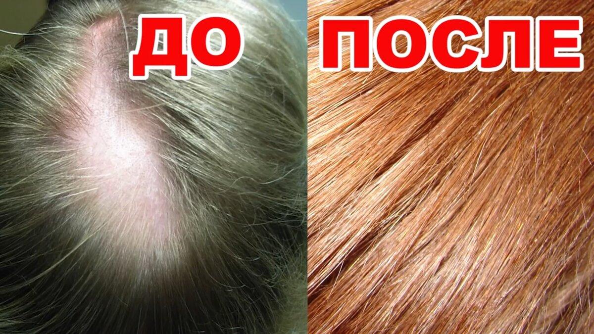 СУПЕР МАСКА для росту і зміцнення волосся. Ця маска вирішить багато проблем з волоссям