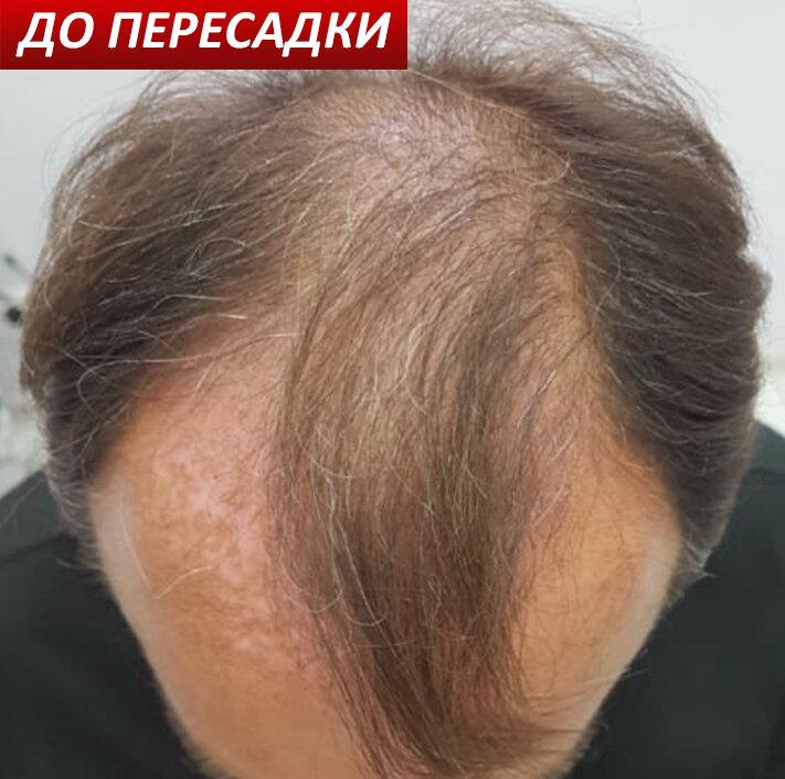 Пересадка волосся. До і після.