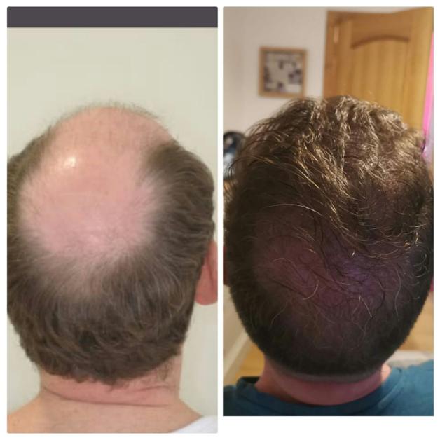 Пересадка волосся «до» і «після» у звичайних людей
