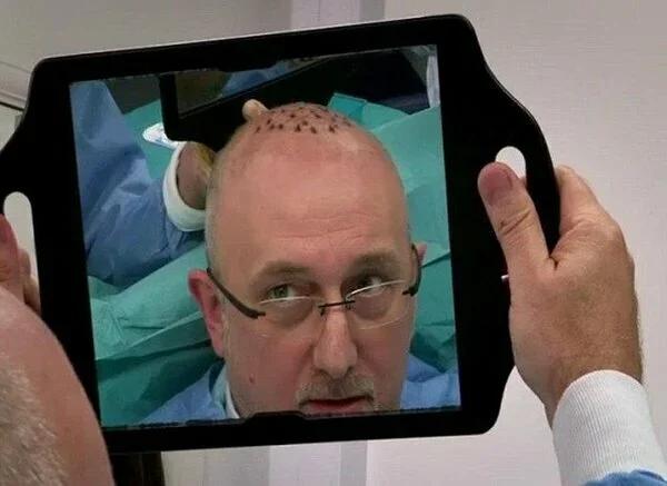 Як безчесні лікарі і косметологи обманюють лисіючих