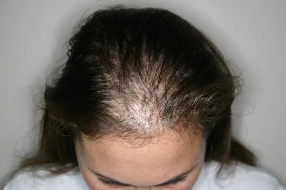 Випадає волосся — перевір серце (і не тільки)