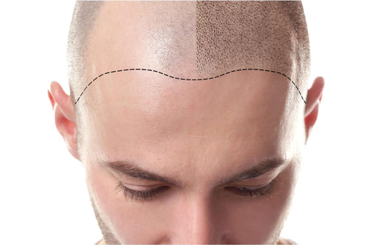 «Ой, а у вас волоски-то намальовані!»: коли татуаж голови — розумний