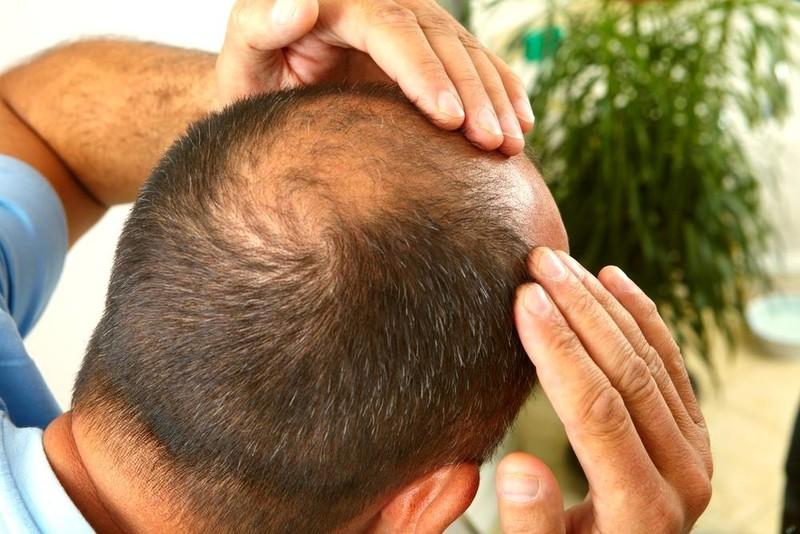 Молоток з голками та інші жахи: як мракобісся допомагає угробити волосся
