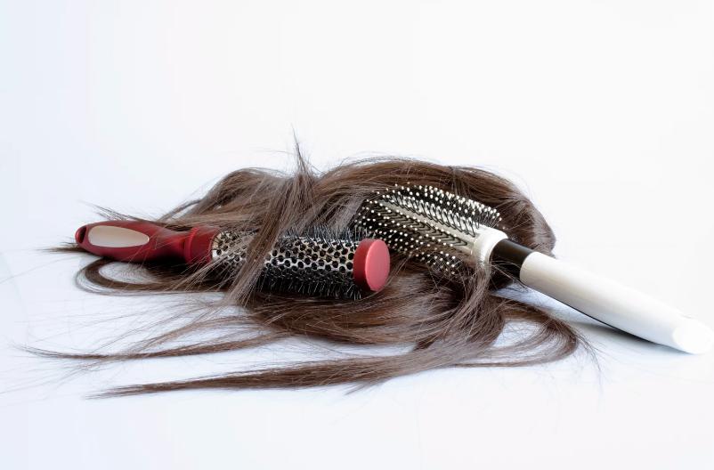 Випадання волосся: гормональні причини