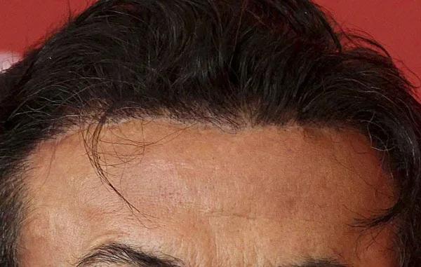 Пересадка волосся у Сталлоне і не-пересадка у Стівена Сігала: порівнюємо результати