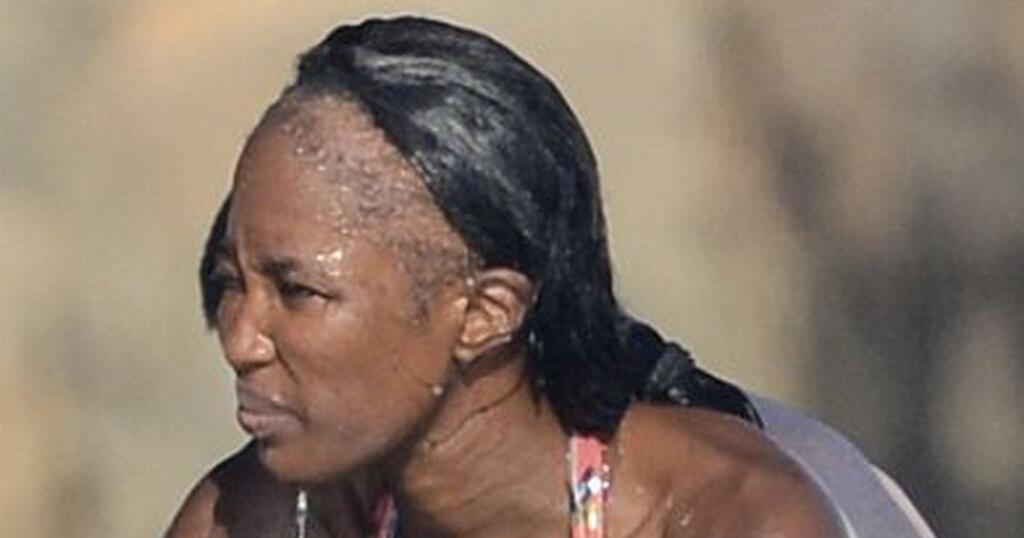 Наомі Кемпбелл втратила волосся. Чому не відновити і як не стати жертвою такого ж виду облисіння
