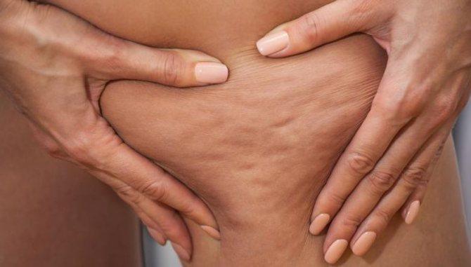2258950 - Як лікуваті розтяжка на шкірі