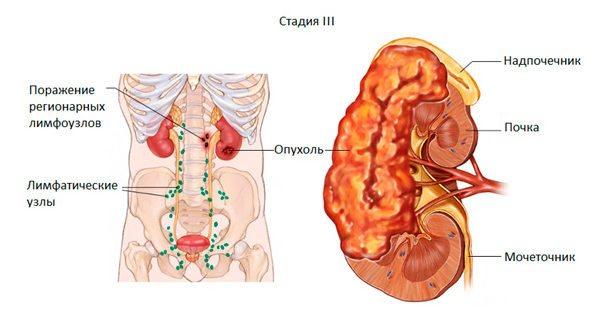 3 стадія раку нирки