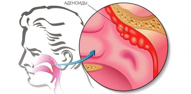 аденоїди
