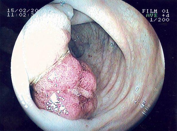 Аденокарцинома ніжнеампулярного відділу прямої кишки