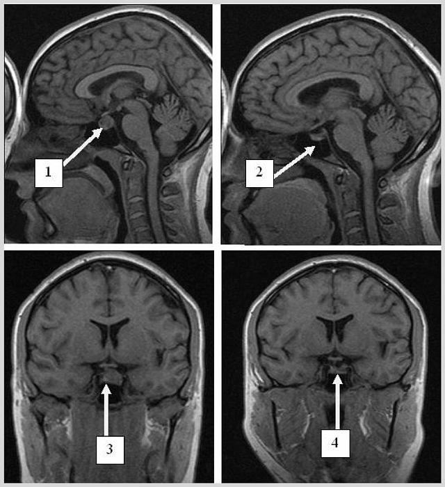 Аденома гіпофіза головного мозку - що це таке