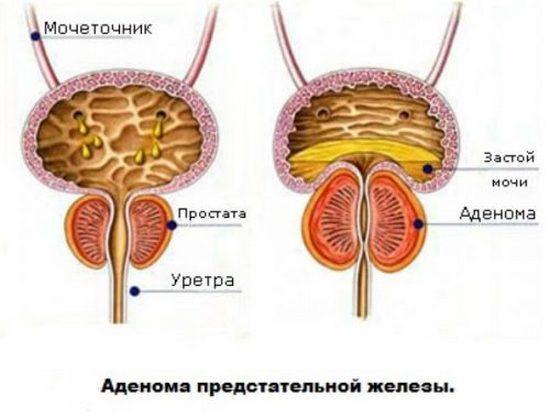 Аденома передміхурової залози