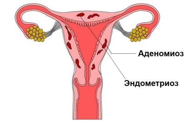 Аденоміоз і ендометріоз в більшості випадків поєднуються один з одним