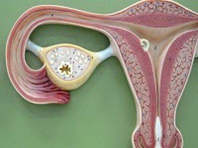 аденоміоз матки