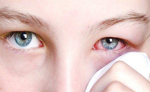 Аденовірусна інфекція очей