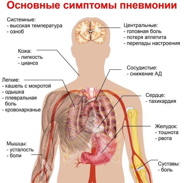 Аденовірусна інфекція у дітей. Симптоми і лікування антибіотиками, народні засоби