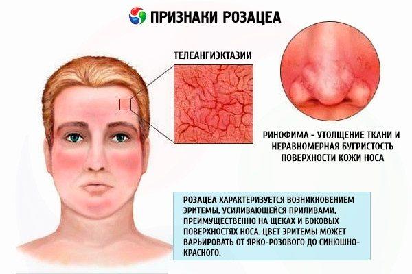 Акне - що це таке, як позбутися від прищів на обличчі. Препарати, дієта лазерне лікування, мезотерапія
