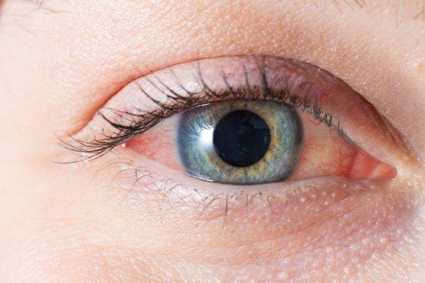 Альбуцид очні краплі. Інструкція по застосуванню дітям, дорослим. Ціна, аналоги