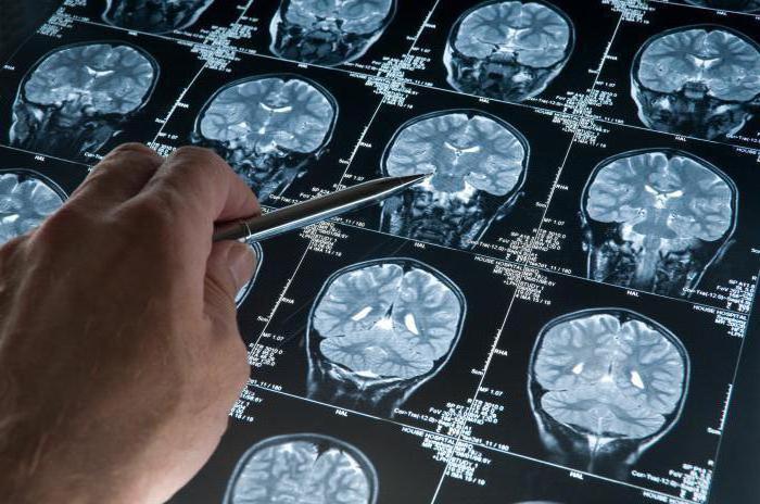 альцгеймера хвороба причини виникнення та лікування