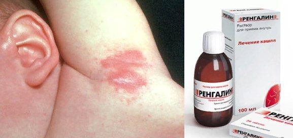 Алергічна реакція у дитини після Ренгаліна