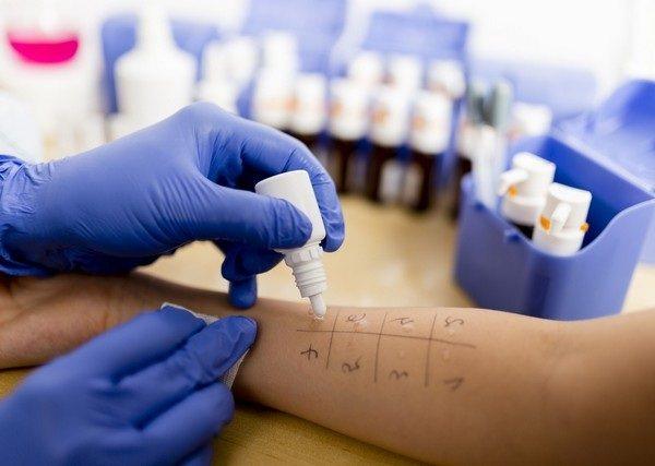 Алергічні тести при екземі
